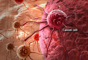 cancer testing leads and live transfer leads